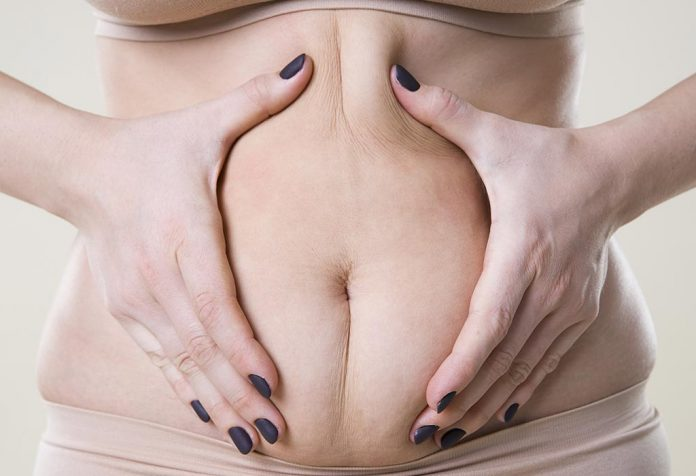 Cellulite during Pregnancy - Causes, Treatment, and Prevention