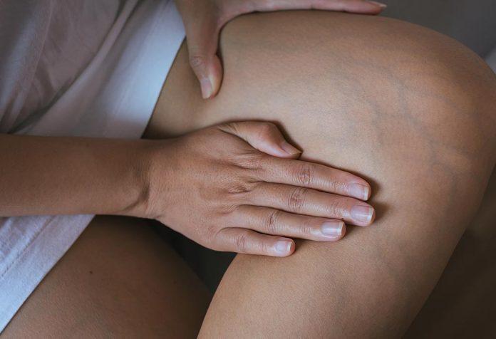 Varicose Veins After Pregnancy