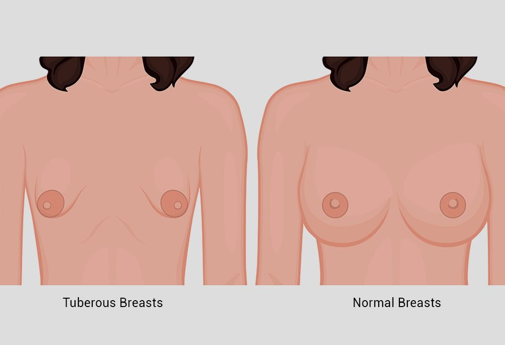 Diagrammatic comparison of tuberous and normal breasts