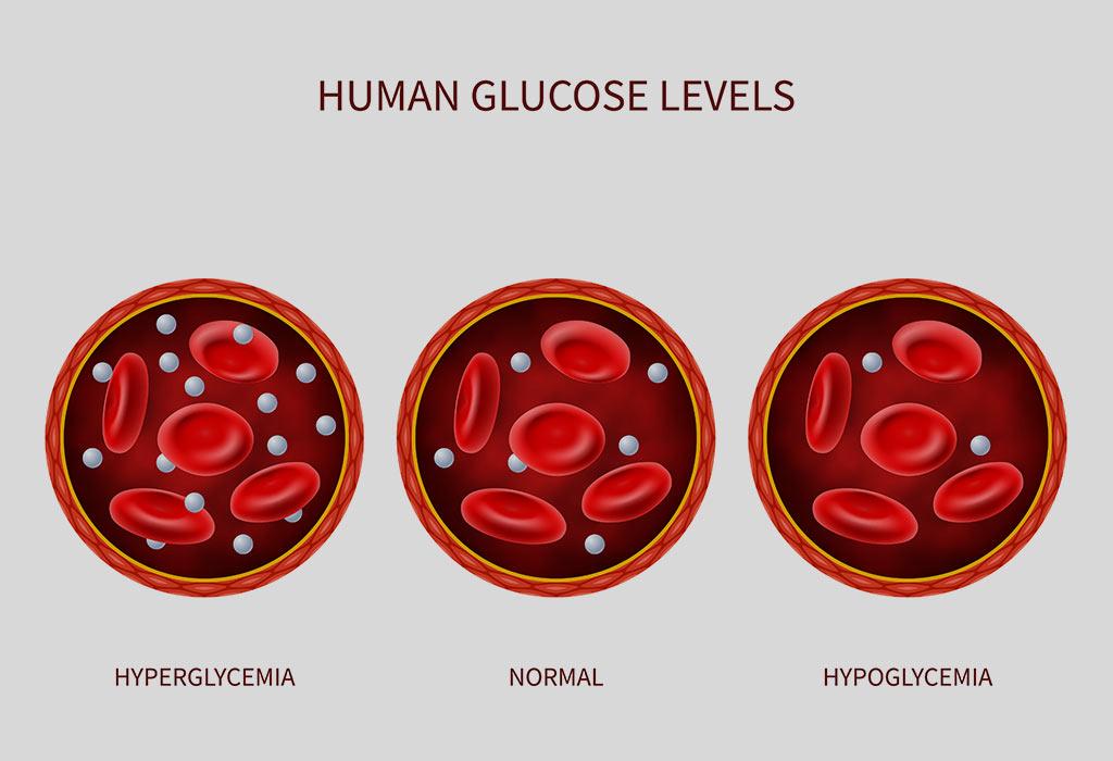 Hypoglycemia Fertility