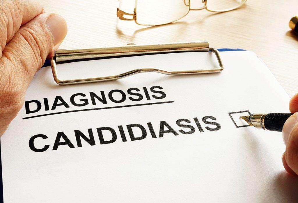 Candidiasis diagnosed