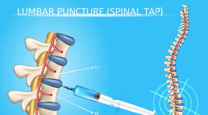 Lumbar Puncture (Spinal Tap) in Children