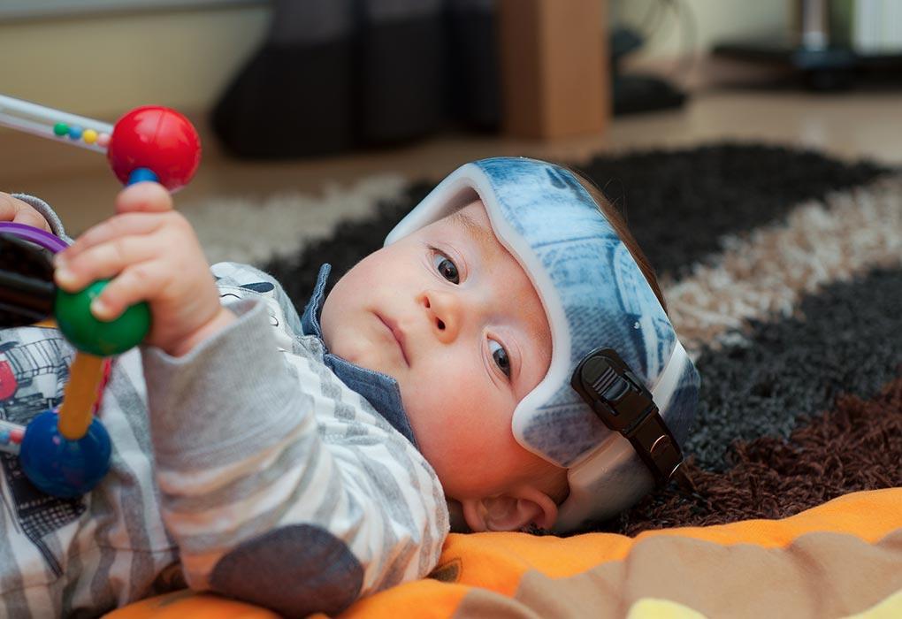 Baby wearing an orthopaedic helmet