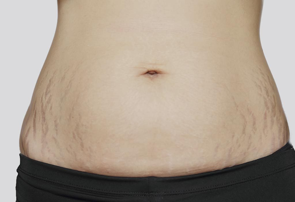 Twin Pregnancy Week 17: Symptoms, Baby Size, Ultrasound & more