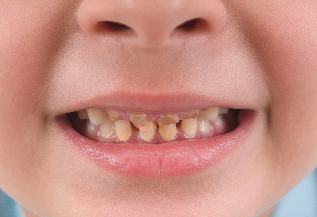 Yellow And Other Tooth Discoloration In Children