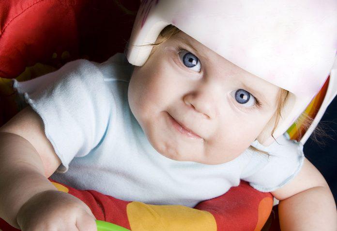 Plagiocephaly (Flat Head Syndrome) - Reasons & Treatment