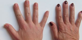 Do You Have Veiny Hands? Check 7 Causes of Veins Popping Out