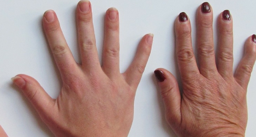 Do You Have Veiny Hands? 7 Causes Why Veins Pop Out