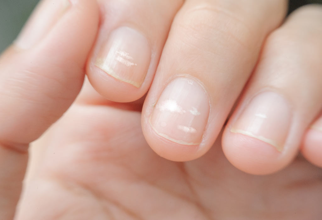White Spots or Leukonychia on Child's Nails: Symptoms & Home Remedies