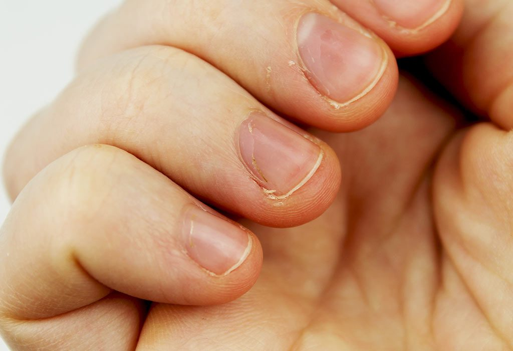 Nails with white spots