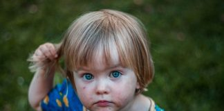 Head & Hair Conditions in Toddlers