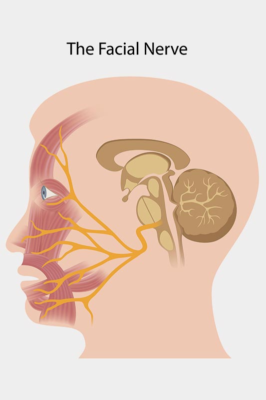 The damaged facial nerve