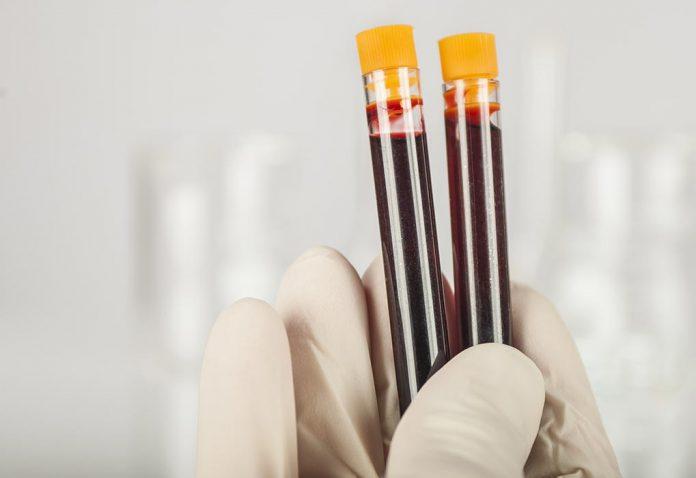 Pre-Pregnancy Genetic Testing - Should You Consider It?