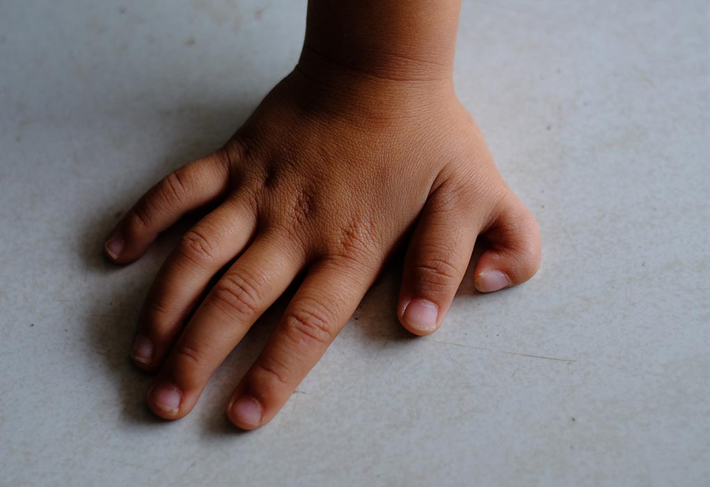 Hand of a child with polydactyly