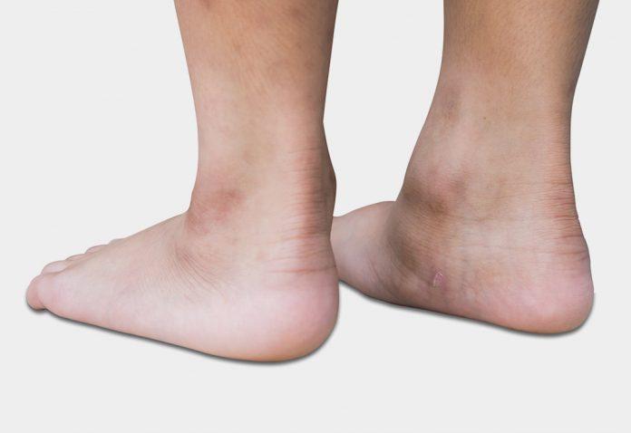 Flat Feet in Children - Reasons, Symptoms & Treatment