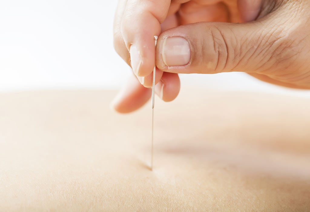Pregnant women may require 1 to 3 sessions of acupuncture, depending on their gestation status
