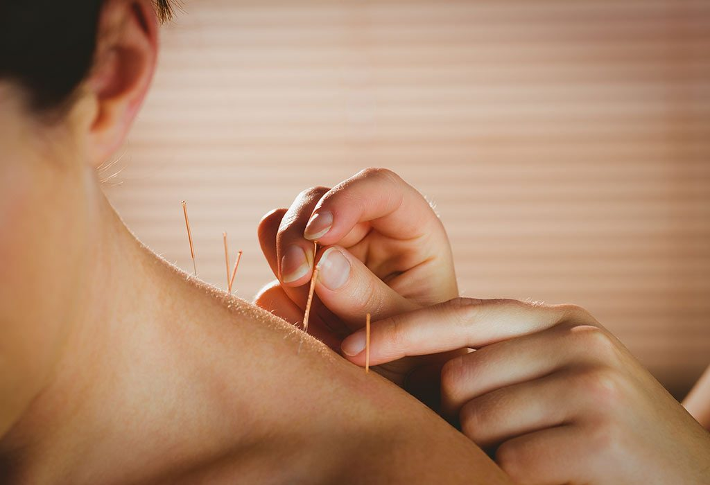 Acupuncture helps relax sore muscles, thus helping the expectant mother