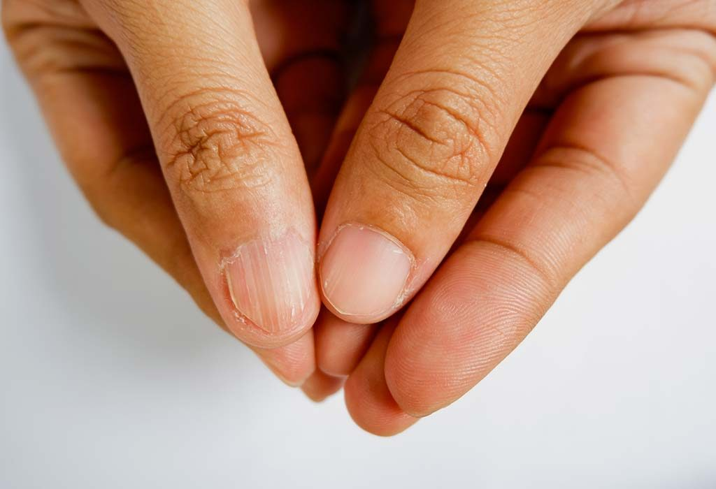 A woman with brittle nails