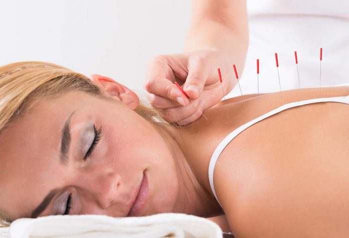 Trying Acupuncture for Weight Loss? Here's The Fact Behind It