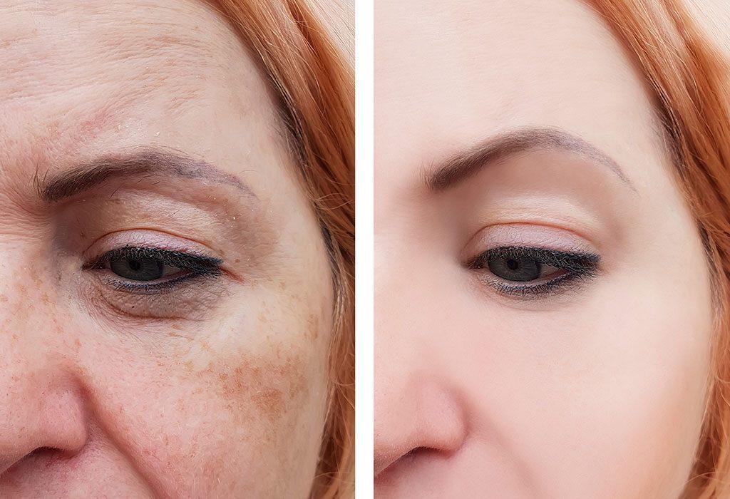 For Reducing Pigmentation