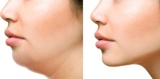 10 Best Ways to Reduce Facial Fat