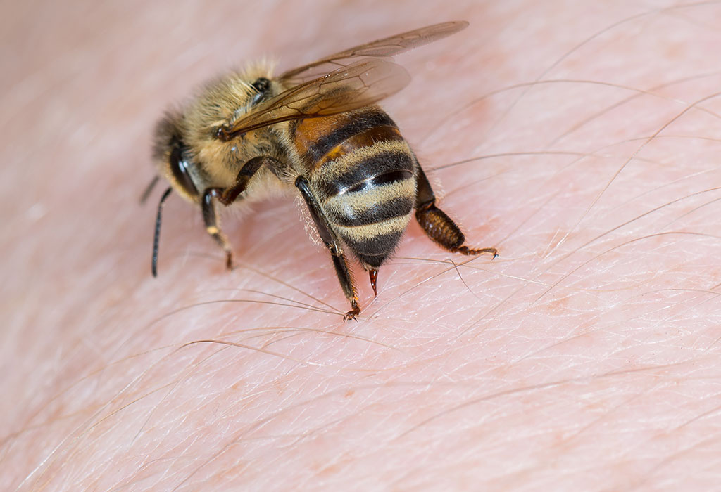 8 Effective Home Remedies to Treat Bee Stings Naturally