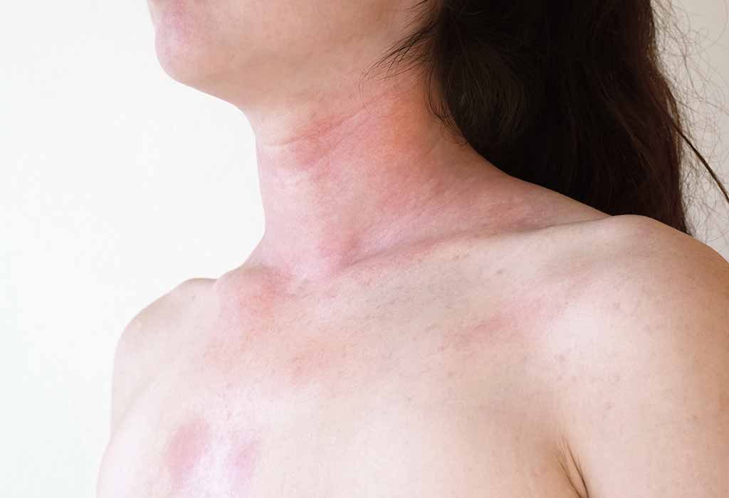 What is Skin Allergy