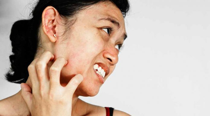 10 Home Remedies for Skin Allergy - Natural Alternatives to Relieve Itching and Rashes