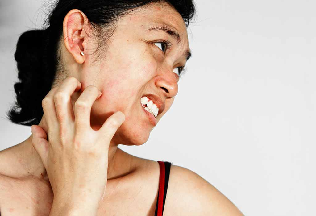 10 Effective Home Remedies For Skin Allergies
