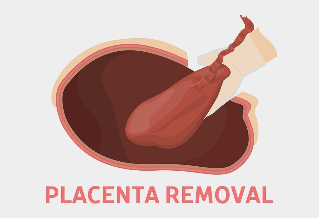 Placenta removal