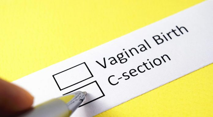 Adhesions After a C- Section - Symptoms and Prevention Tips