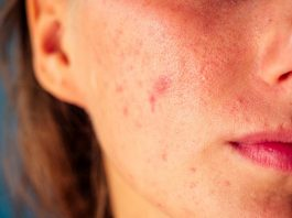 Simple Ways to Deal With Pimples and Acne in Summers