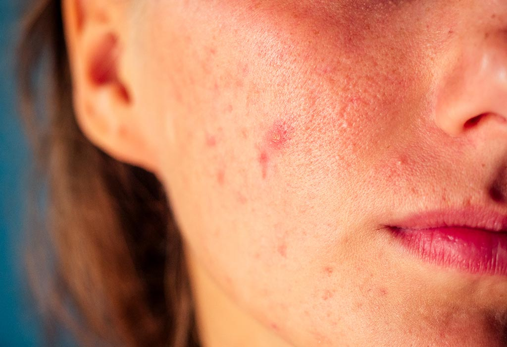 8 Tips To Deal With Pimples Acne During Summer Season