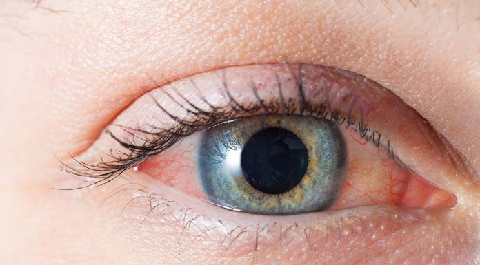 11 Ways to Treat Red Eyes