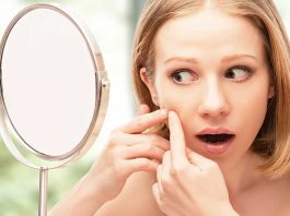 10 Home Remedies for Whiteheads