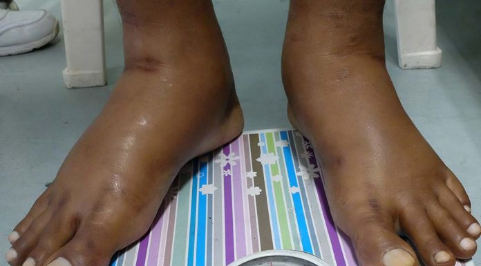 Oedema Swelling during Pregnancy - Causes and Relief