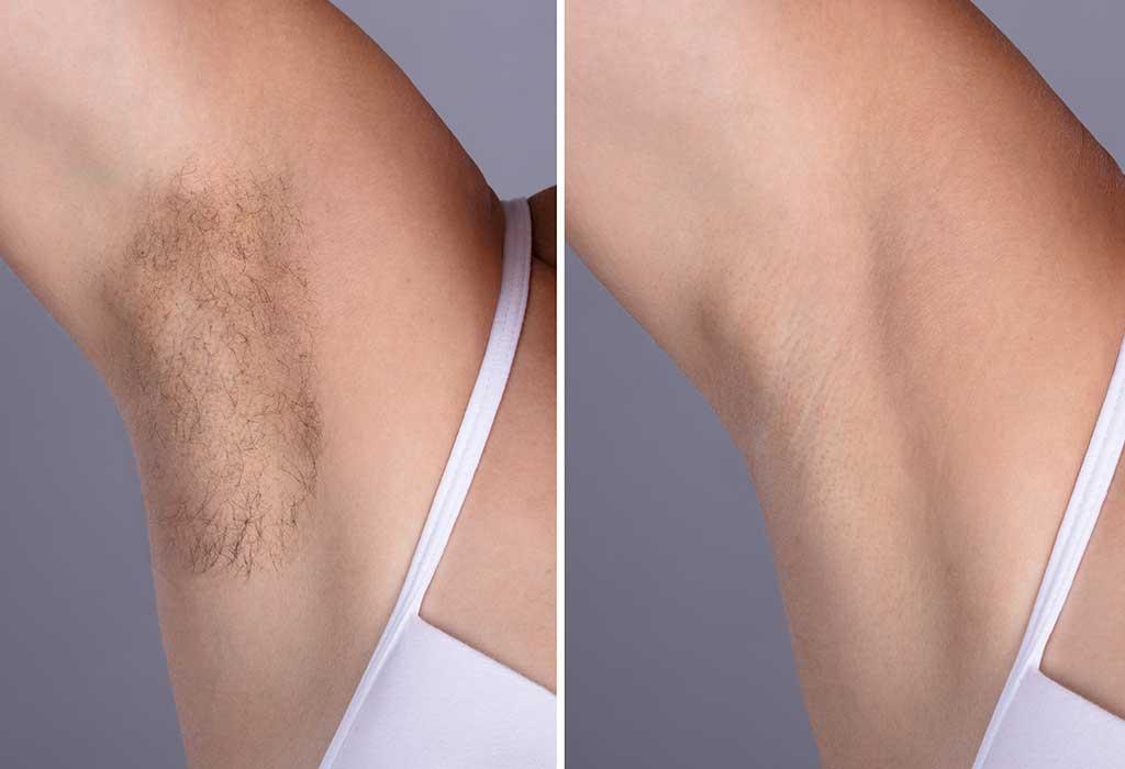 9 Effective Ways To Remove Underarm Armpit Hair