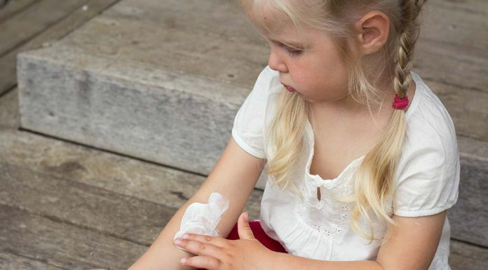 Effective Home Remedies for a Summer Rash