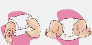 Congenital Talipes Equinovarus or Clubfoot - Causes and Treatment