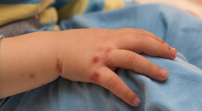 Home Remedies for Hand Foot Mouth Disease