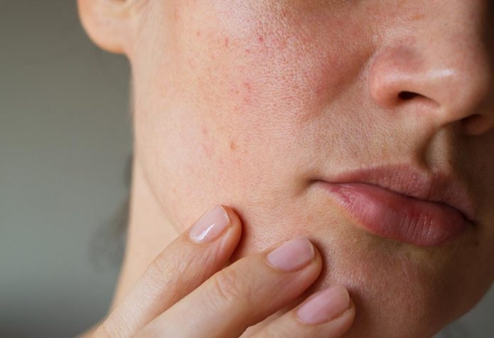 15 Effective Home Remedies for Open Pores