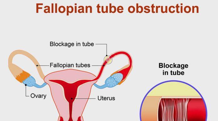 Natural Treatment for Blocked Fallopian Tubes