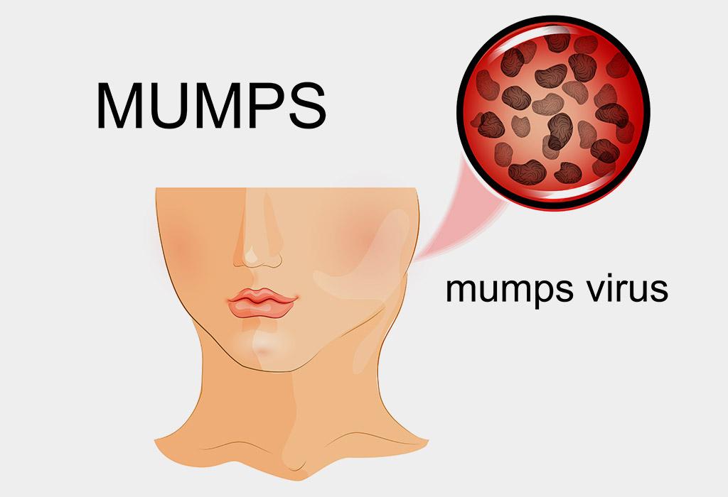 गर्भवती महिलाओं में मम्प्स होना कितना आम है?