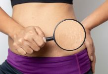 The Truth About Stretch Marks- 4 Signs You May Get Them While Pregnant