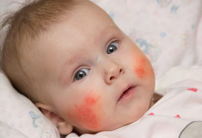 बाळांना होणारा 'एक्झिमा' – कारणे, लक्षणे आणि उपचार
