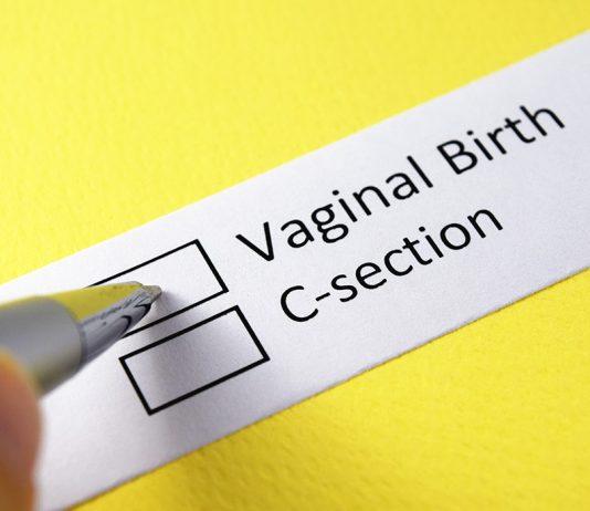 नैसर्गिक पद्धतीने बाळाचा जन्म विरुद्ध सी-सेक्शन