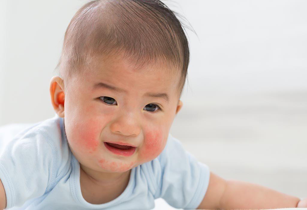 baby with a skin rash