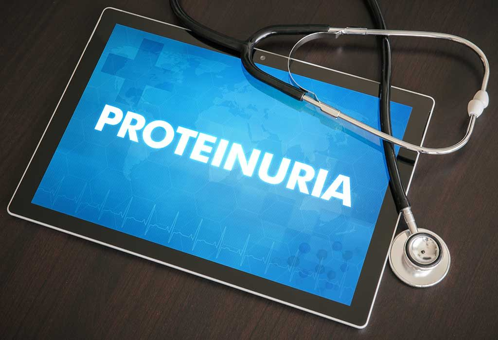 Proteinuria, a Cause of Eclamspia During Pregnancy