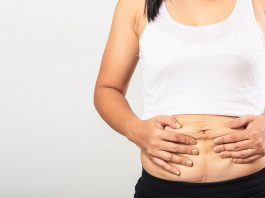 Mother's Apron Belly After Pregnancy - Causes and Remedies