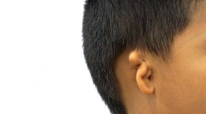 Microtia in Babies - Types, Causes and Treatment